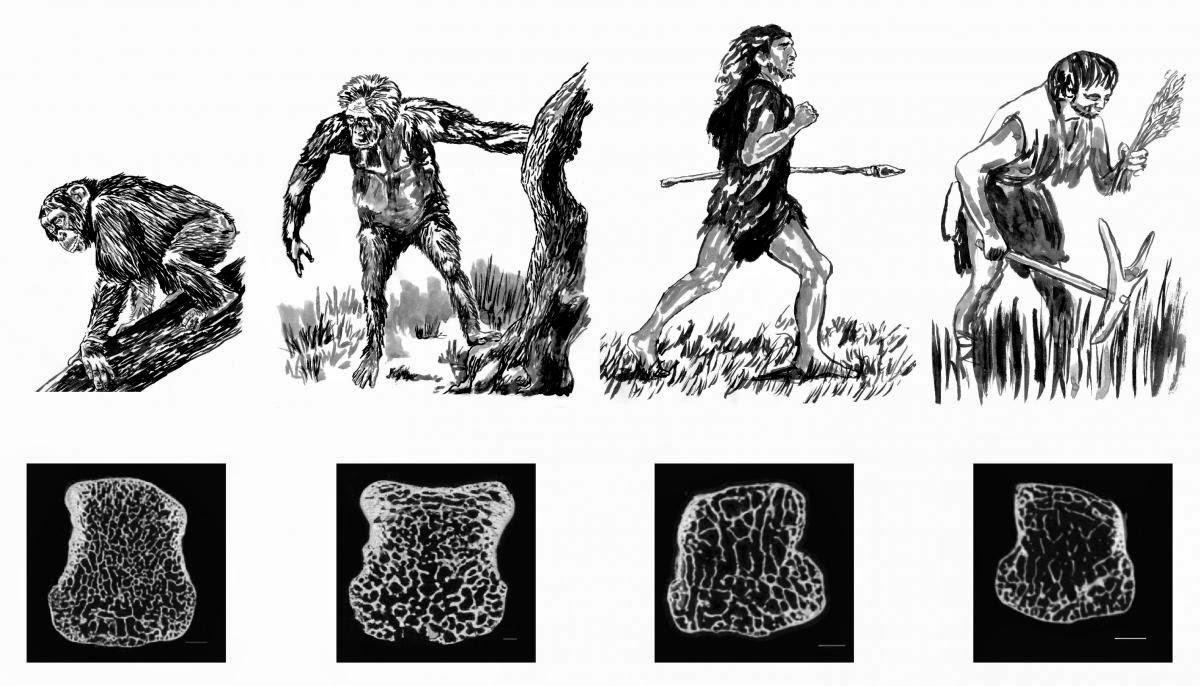 tarımla birlikte kemikler güçsüzleşti