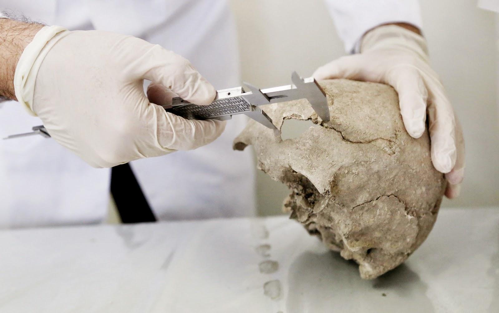 1000 yıl önce beyin ameliyatı