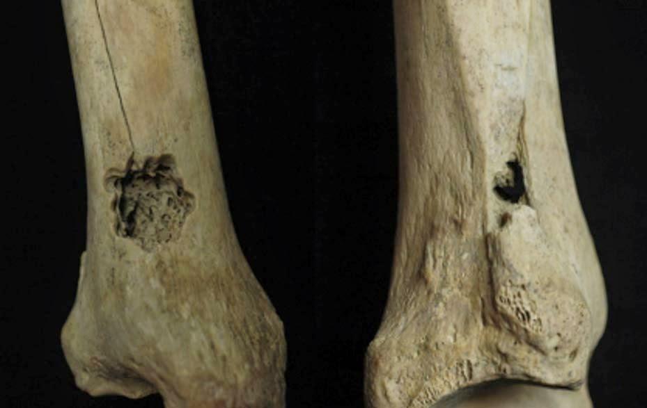 Peru'da bulunan iki iskelette trepanasyon izleri