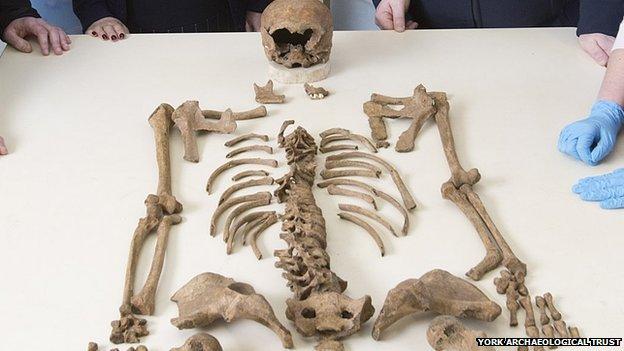 ingiltere'de altyapı çalışmaları sırasında 12 adet iskelet bulundu