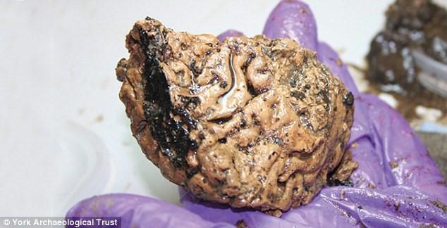 İngiltere'de 2600 Yıllık Korunmuş Beyin Bulundu