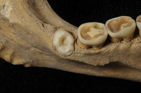 antik hyperdontia neolitik diş