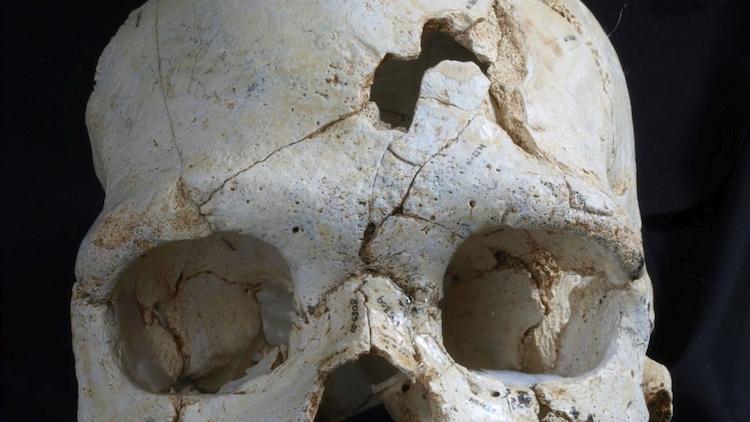 arkeolojik cinayet kafatası