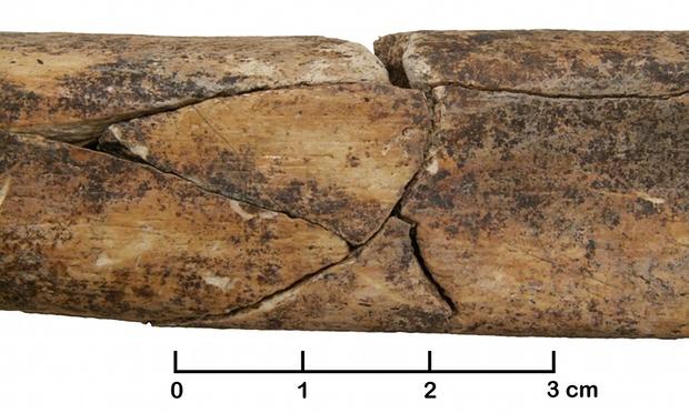Toplu mezarda bulunan bir yetişkine ait kırık kaval kemiği. Bu kırık işkence ya da ölümden sonra bir tahribe işaret edebilir.