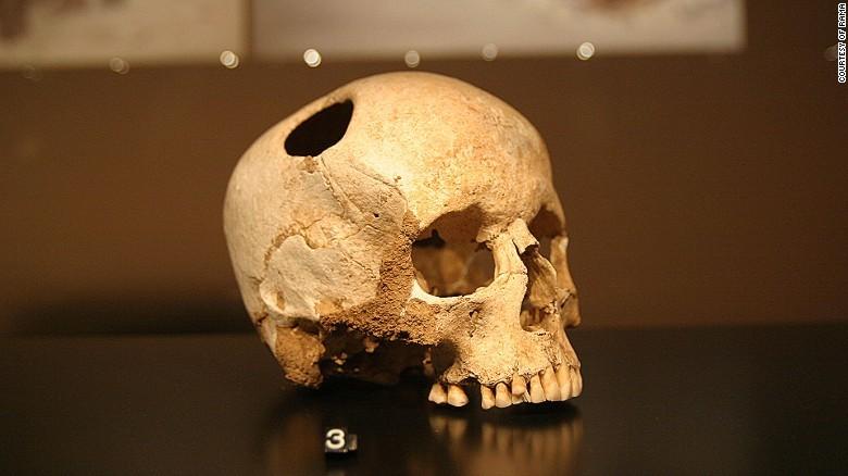Fransa'daki Lausanne Müzesi'nde trepanasyon uygulanmış bir kafatası. Kemiklerde iyileşme izleri görüldüğünden ameliyattan sonra bireyin bir süre daha yaşadığı anlaşılmıştır.