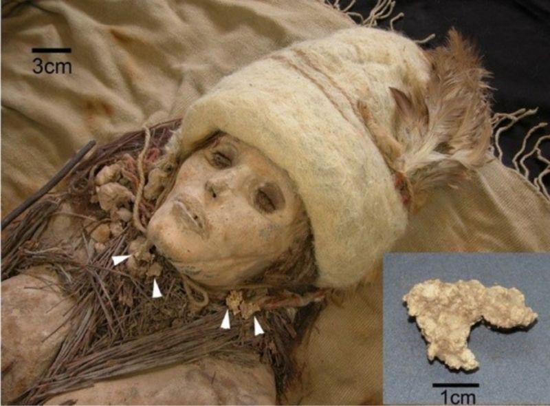 Bilinen En Eski Peynir 3800 Yıllık Bir Mumyanın Yanında Bulundu