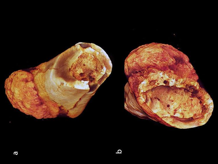 Metatarsal kemiğini (a) ve (b) kemik yüzeyini gösteren canlandırmalar, içerideki süngerimsi ilik yapısını ve açıkça kemik zarının kenarında yoğunlaşmış kortikal (kabuksal) tahribatı gözler önüne seriyor. Resim (b)'de kötü huylu tümörün bitişiğindeki dış kortikal kenarda da karakteristik saç fırçası görünümü görülüyor [F: Edward Odes (Wits)]