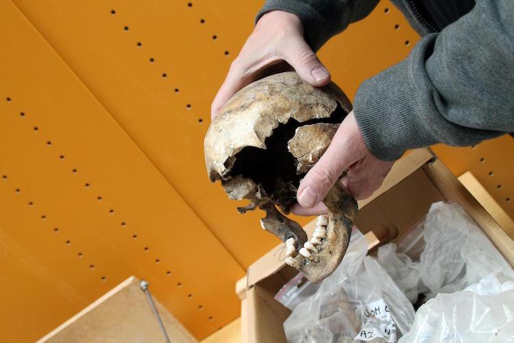 Frengi Hastası Genç Bir Kızın Kafatası. F: BIRGITTE SVENNEVIG/SDU