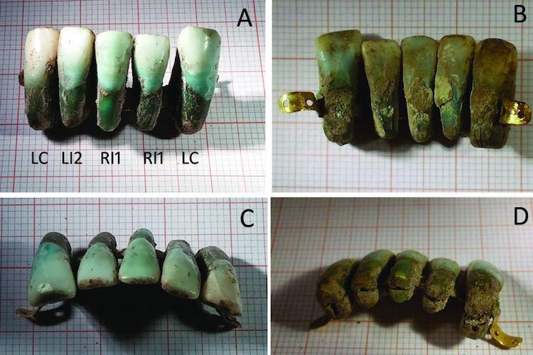italya'da en eski diş protezi bulundu