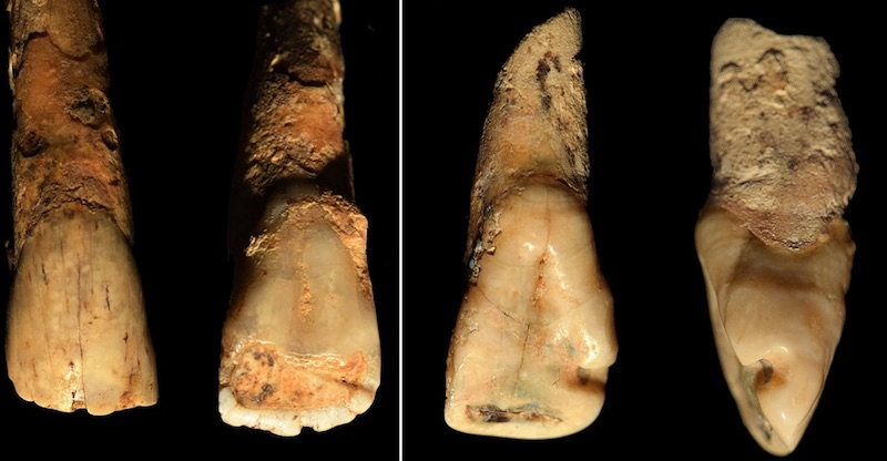 4,500 Year Old Tooth Found in Italy - image hemp1 on https://sattvnews24.com